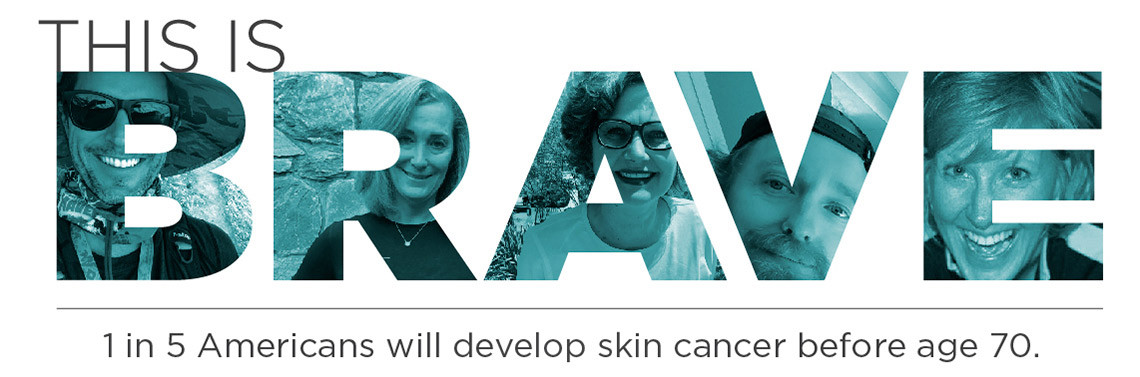 This is brave. 1 in 5 Americans will develop skin cancer before age 70.